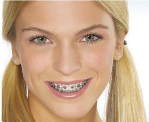 Ortodontijos kaina
