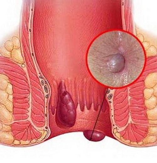 hemorojaus gydymas